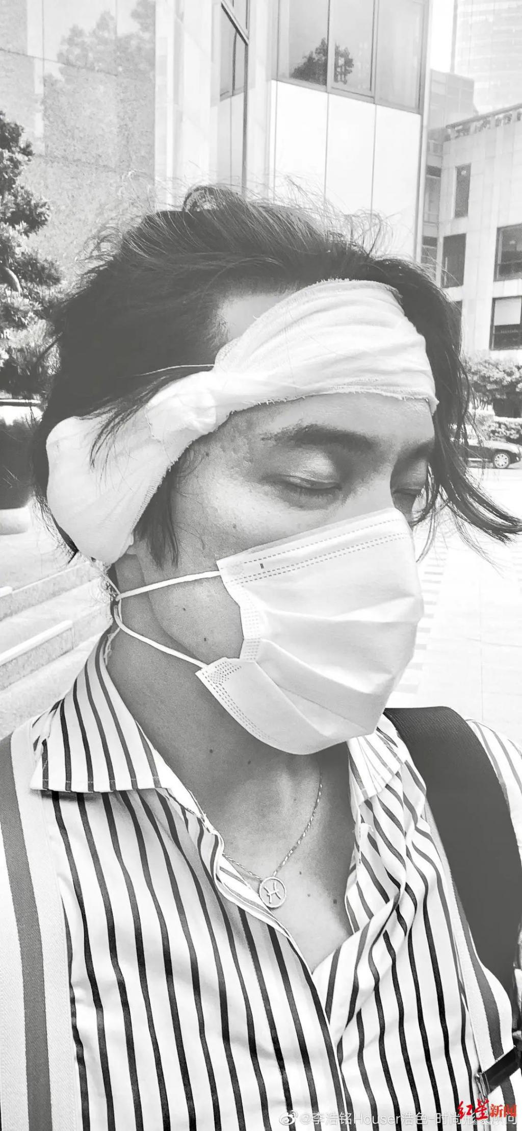 路边救女生左耳被咬掉三分之一,伤者工作涉形象美学