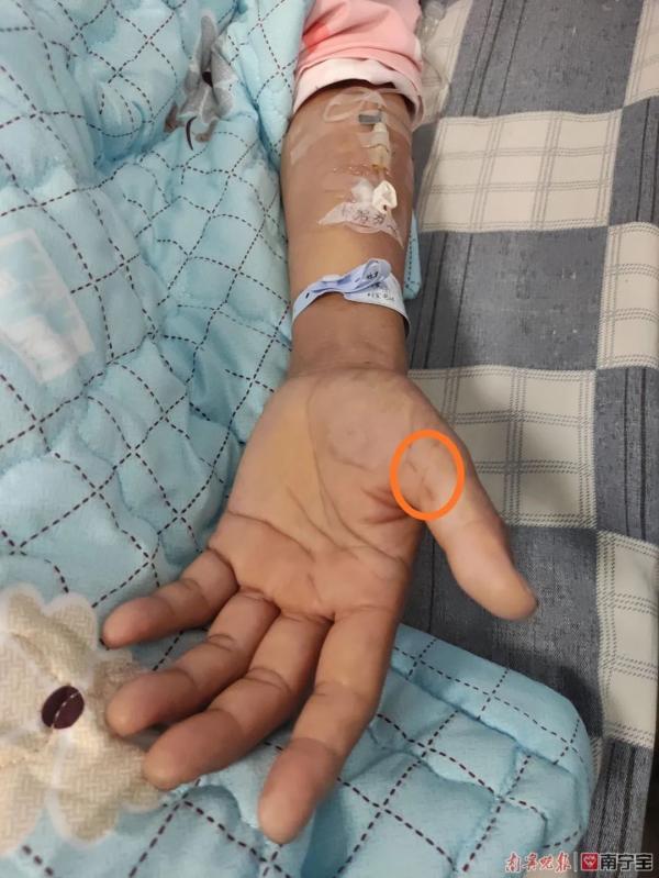 女子患上罕见病,只因砍猪骨时拇指被刺出血
