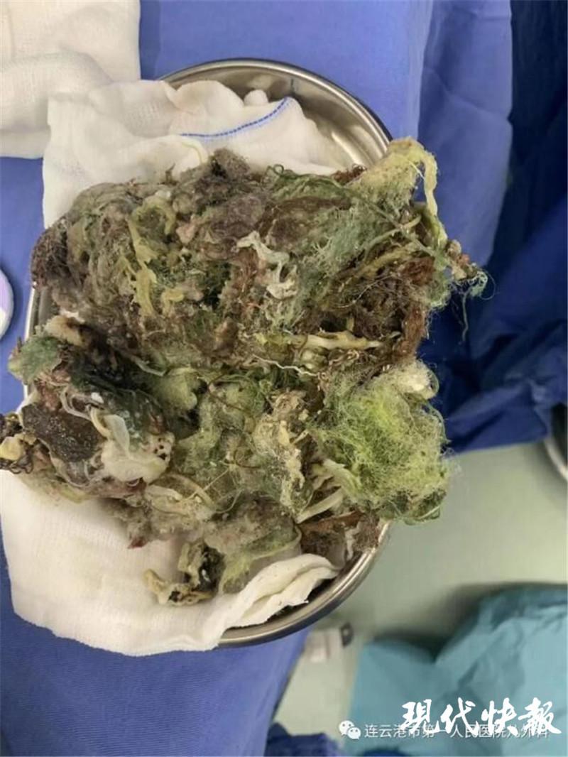 2岁男童连续呕吐3天 医生从胃取出1 斤多棉絮