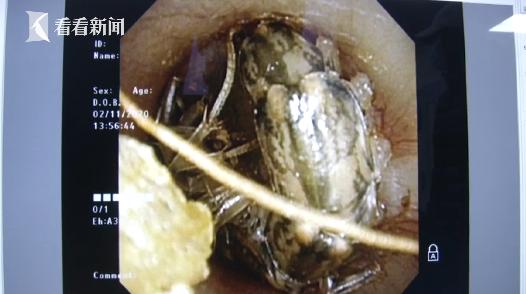6岁女童哭喊耳朵疼 医生一查:有条3厘米长虫子