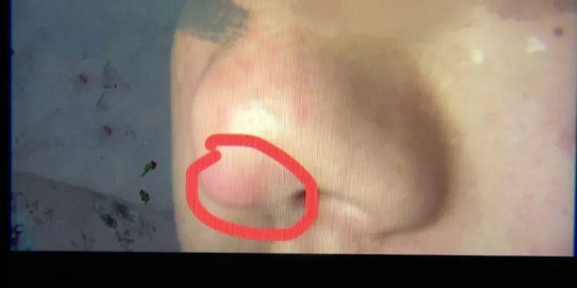 女子鼻尖出现神秘白色物体 有孕在身束手无策