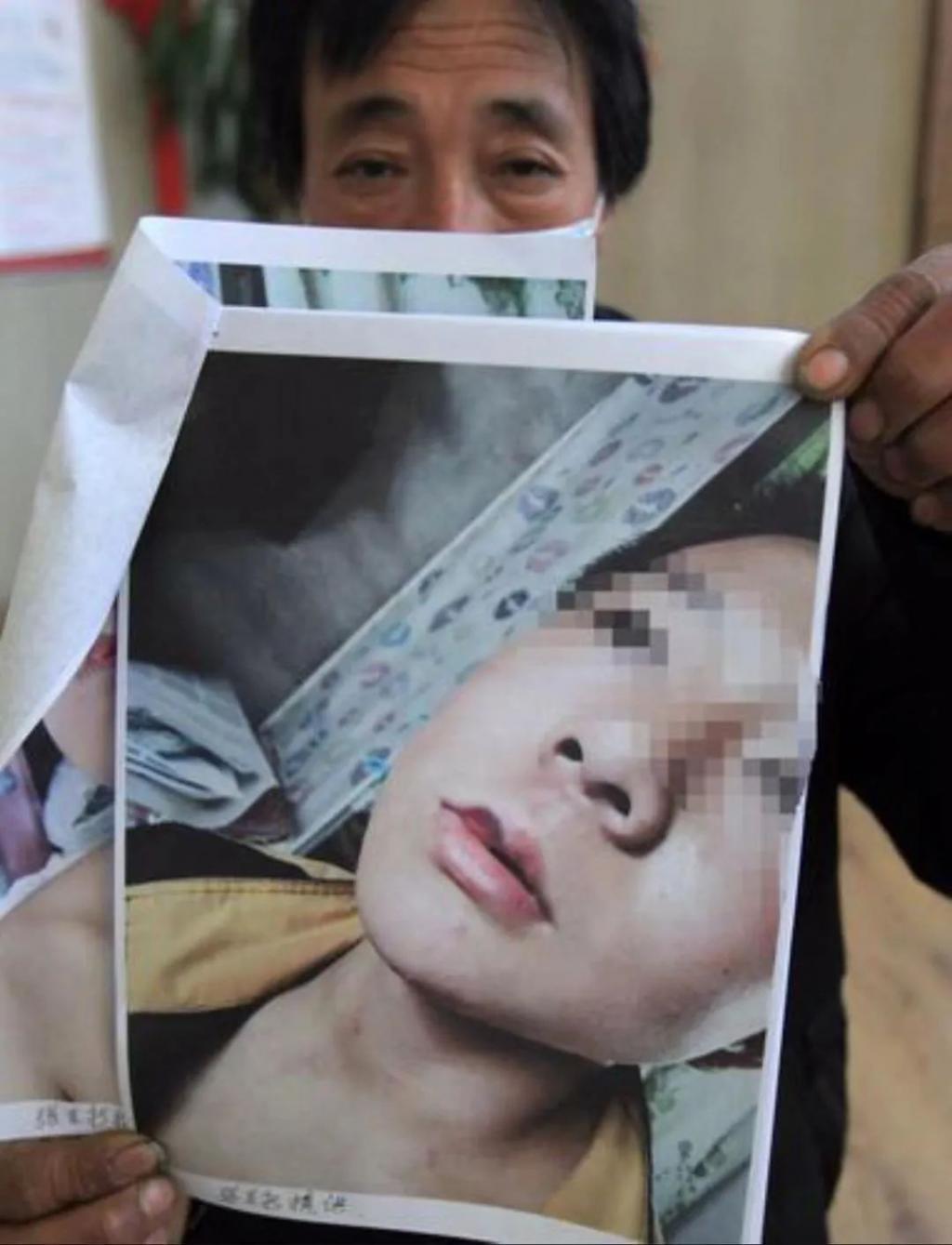 15岁孩子因琐事在学校被殴打 校方竟回避