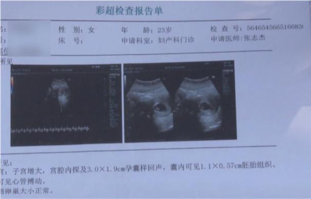 23岁姑娘全麻做整形,术后恶心反胃:怀孕了!
