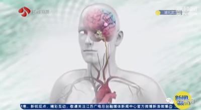 女子一学习就头痛,去医院一查 :是真的有疾病