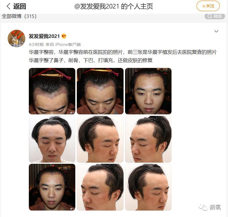 华晨宇,承认整形有那么丢脸吗?
