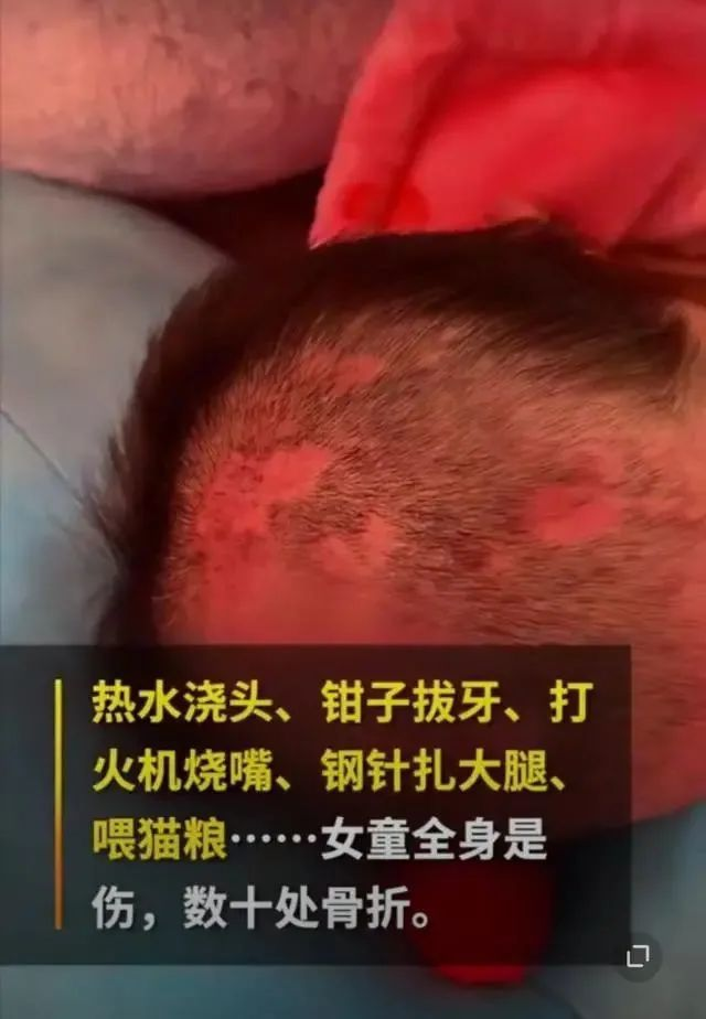 烫水浇头、火烧嘴 6岁女童遭亲妈及其男友虐待