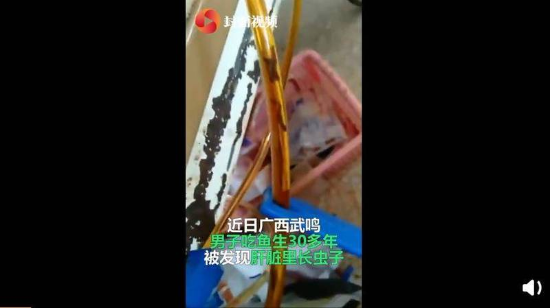 爱食生鱼片32年!中国男子胆管流出满满