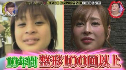 女孩整容100次花127万 从
